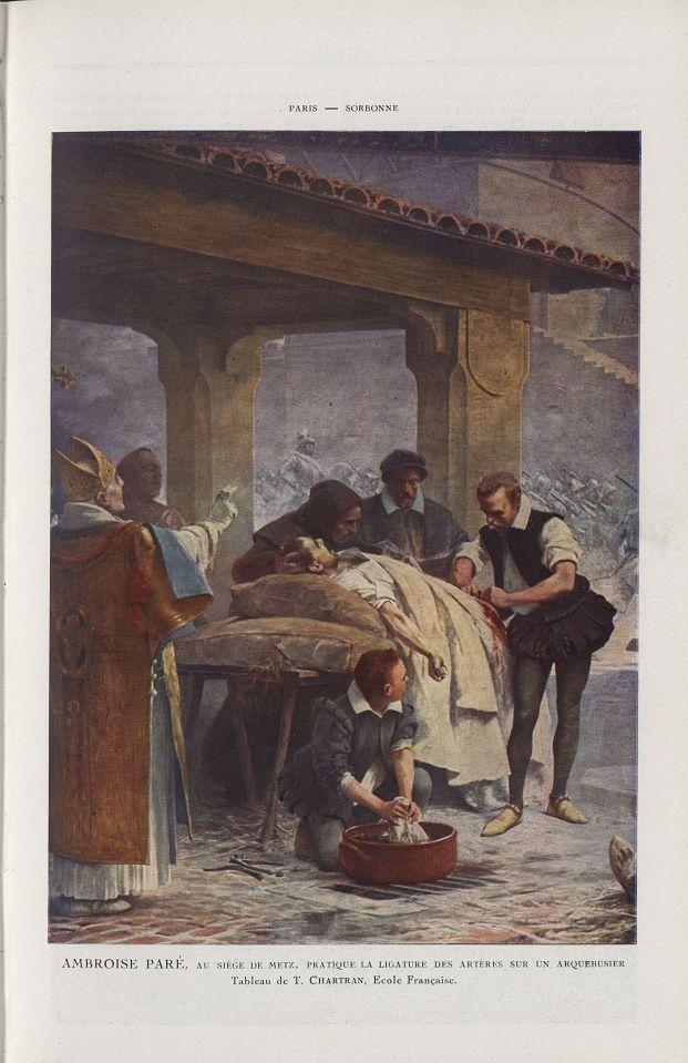 Ambroise Paré, au siège de Metz, pratique la ligature des artères sur un arquebusier (T. Chartran) - [...] -  - medchanteclx1922x12x0069