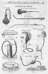 Poire de Politzer / Fig. 418. Poire de Politzer avec sonde d'Itard / Fig. 878. Sonde de Bonnafont /  [...]