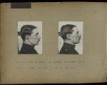 [Cas de prothèse auriculaire 131 / Portrait de profil droit avant pose de prothèse auriculaire / Por [...] - Première guerre mondiale. Gueules cassées (invalides de guerre). Chirurgie maxillo-faciale. Chirurgie réparatrice. Stomatologie. - medpont_gc_album_01x0136