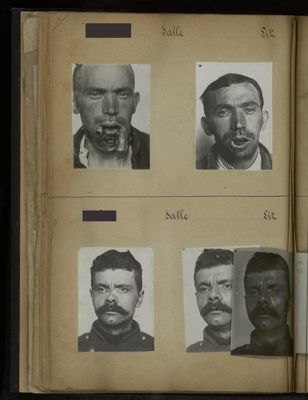[Cas de  prothèse nasale 95 / Portrait de trois quarts à gauche après pose de prothèse nasale] - Première guerre mondiale. Gueules cassées (invalides de guerre). Chirurgie maxillo-faciale. Chirurgie réparatrice. Stomatologie. - medpont_gc_album_02x0077